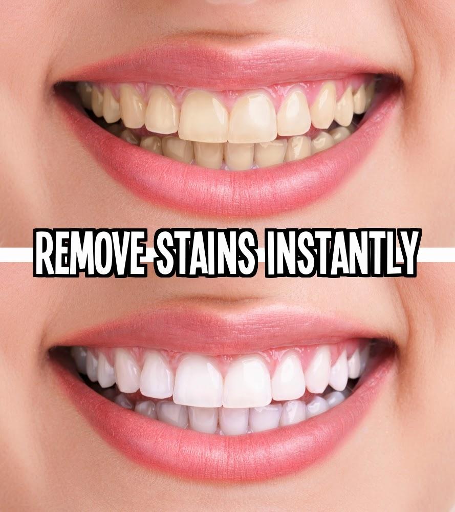 תוצאת תמונה עבור remove stains 31 clever uses for coconut oil 31 Clever Uses for Coconut Oil How To Remove Stains On Teeth Instantly